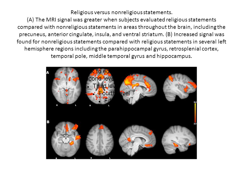 Religious versus nonreligious statements. (A) The MRI signal was greater when subjects evaluated religious statements compared with nonreligious state