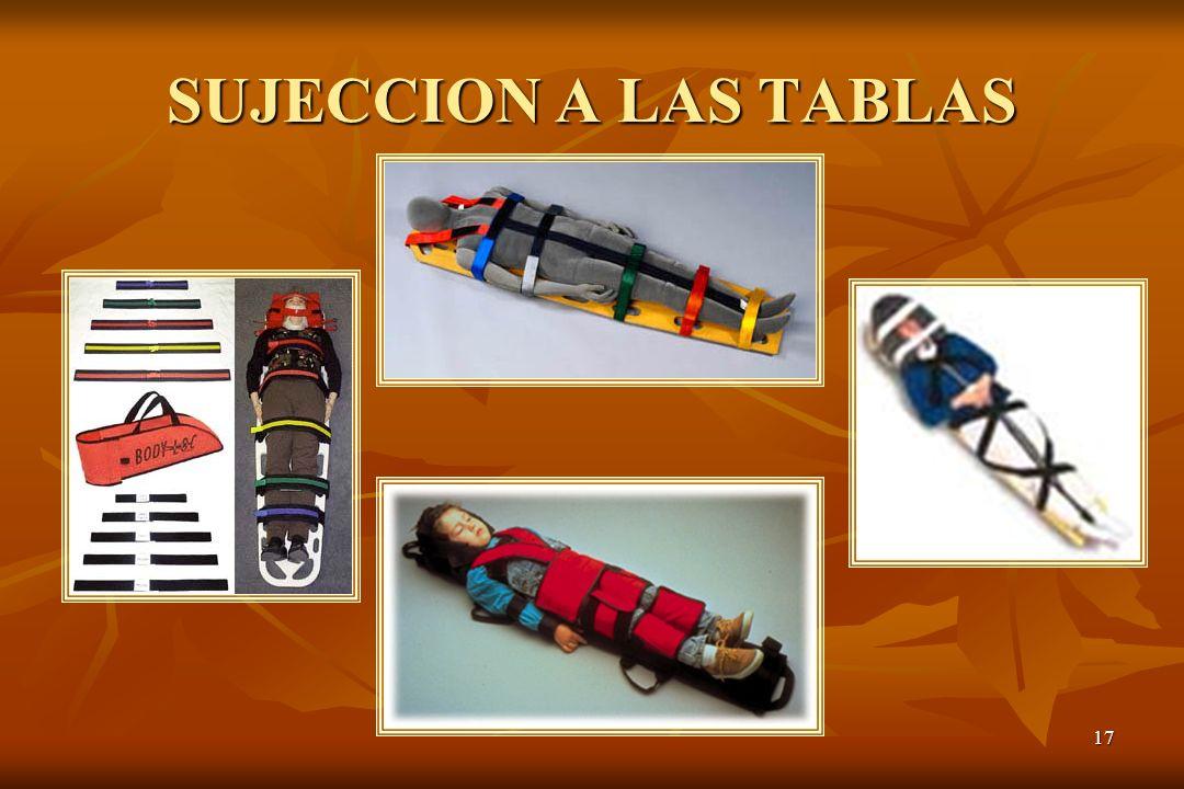 17 SUJECCION A LAS TABLAS