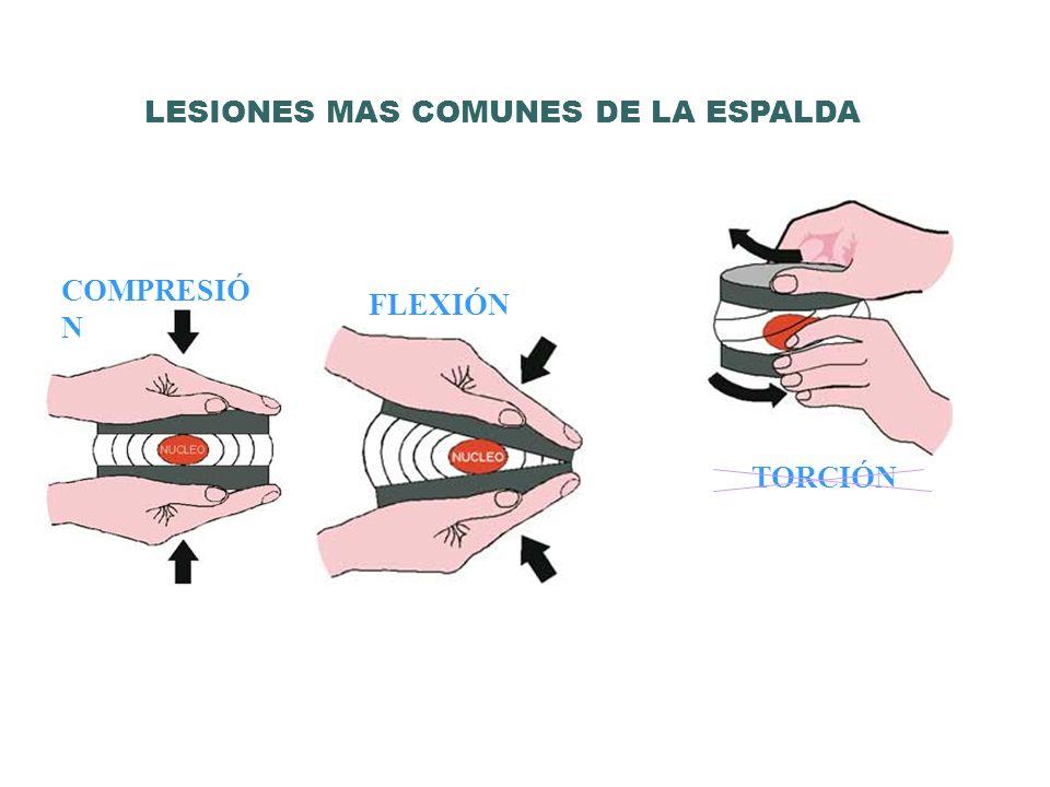 COMPRESIÓ N FLEXIÓN TORCIÓN LESIONES MAS COMUNES DE LA ESPALDA