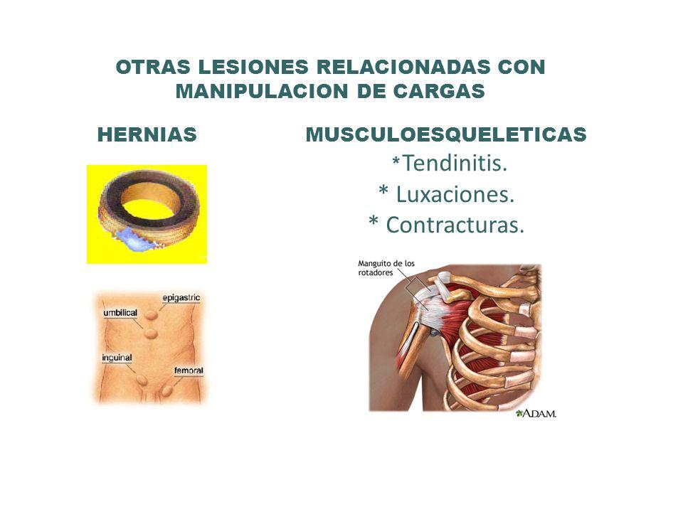OTRAS LESIONES RELACIONADAS CON MANIPULACION DE CARGAS HERNIAS MUSCULOESQUELETICAS * Tendinitis. * Luxaciones. * Contracturas.