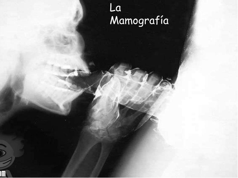 MAMOGRAFÍA La Mamografía