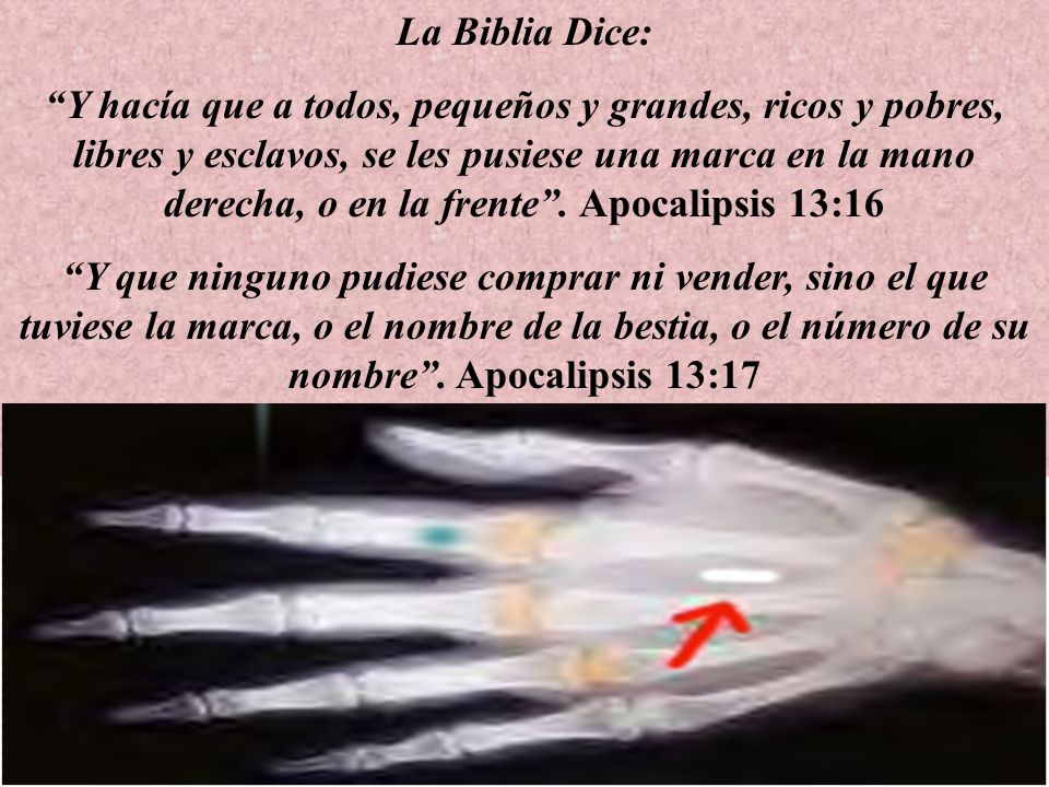 La Biblia Dice: Y hacía que a todos, pequeños y grandes, ricos y pobres, libres y esclavos, se les pusiese una marca en la mano derecha, o en la frente.