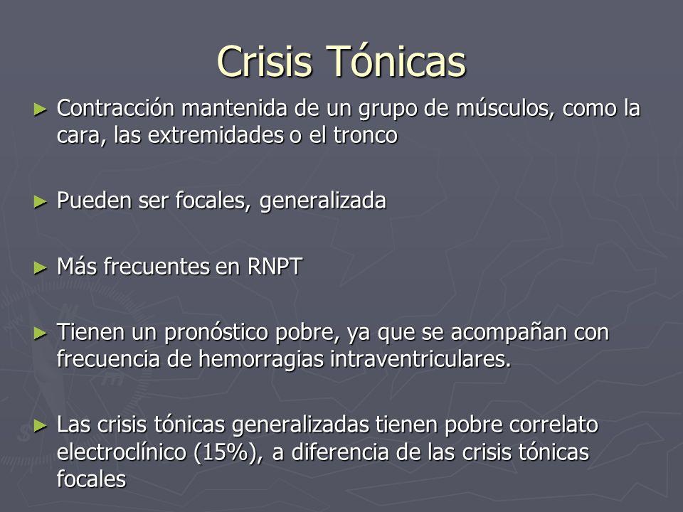 Crisis Tónicas Contracción mantenida de un grupo de músculos, como la cara, las extremidades o el tronco Contracción mantenida de un grupo de músculos