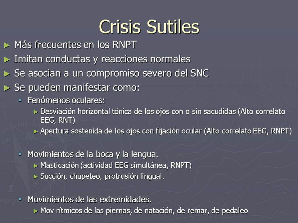 Crisis Sutiles Más frecuentes en los RNPT Más frecuentes en los RNPT Imitan conductas y reacciones normales Imitan conductas y reacciones normales Se