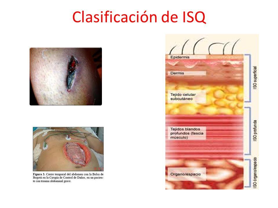 Clasificación de ISQ
