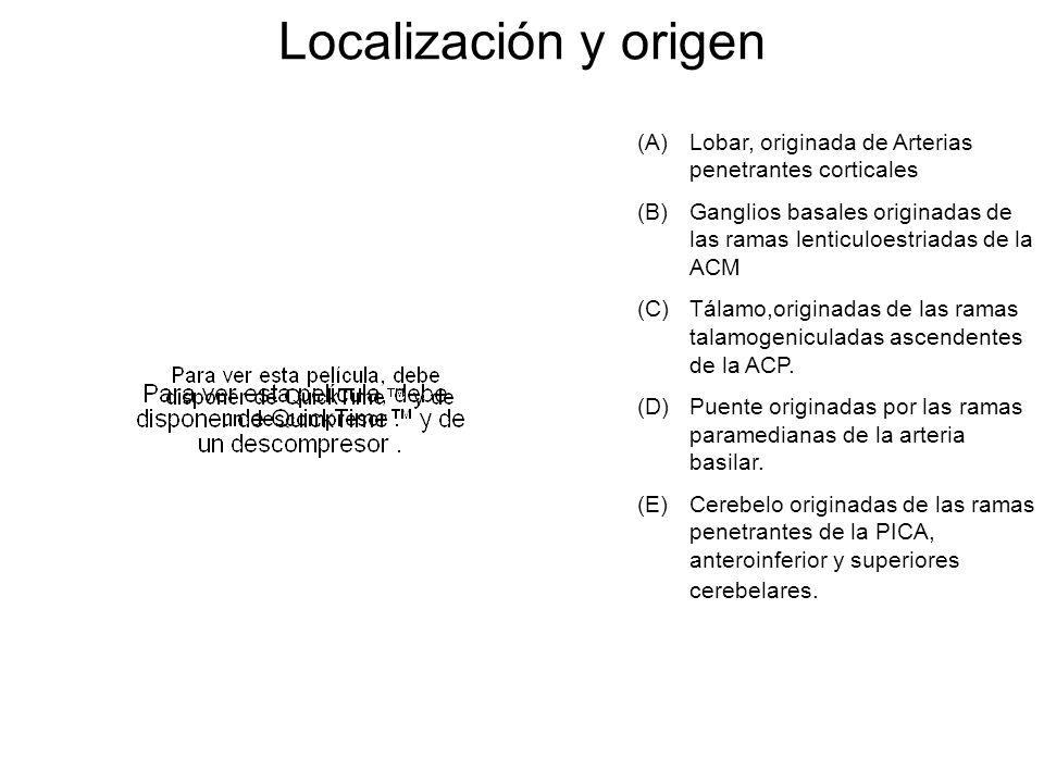Localización y origen (A)Lobar, originada de Arterias penetrantes corticales (B)Ganglios basales originadas de las ramas lenticuloestriadas de la ACM