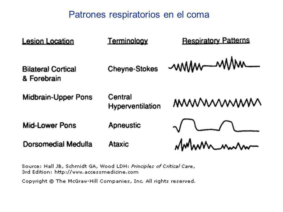 Patrones respiratorios en el coma