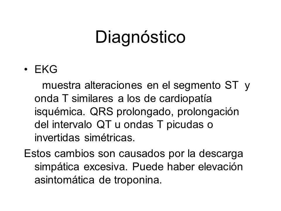EKG muestra alteraciones en el segmento ST y onda T similares a los de cardiopatía isquémica. QRS prolongado, prolongación del intervalo QT u ondas T