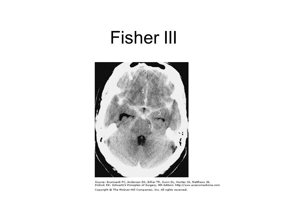 Fisher III