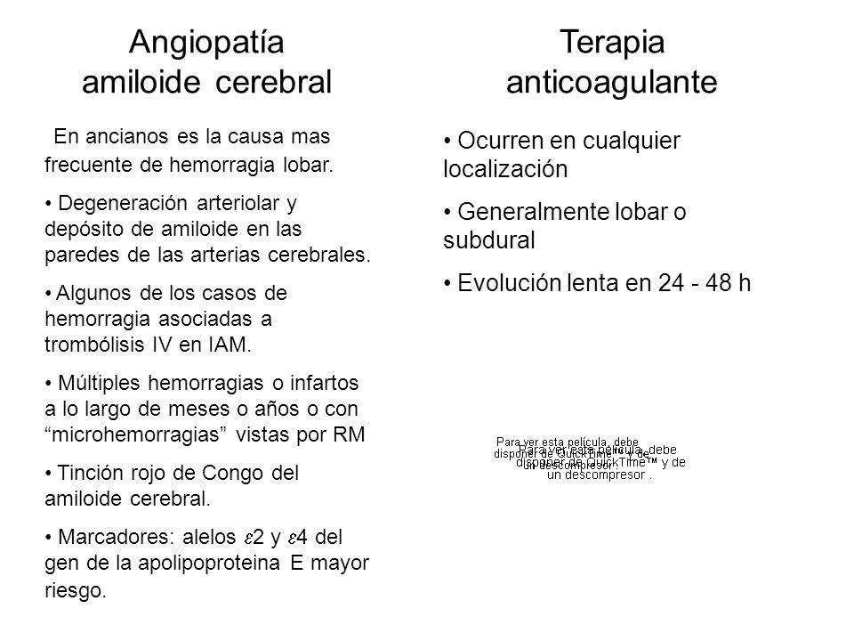 Angiopatía amiloide cerebral En ancianos es la causa mas frecuente de hemorragia lobar. Degeneración arteriolar y depósito de amiloide en las paredes