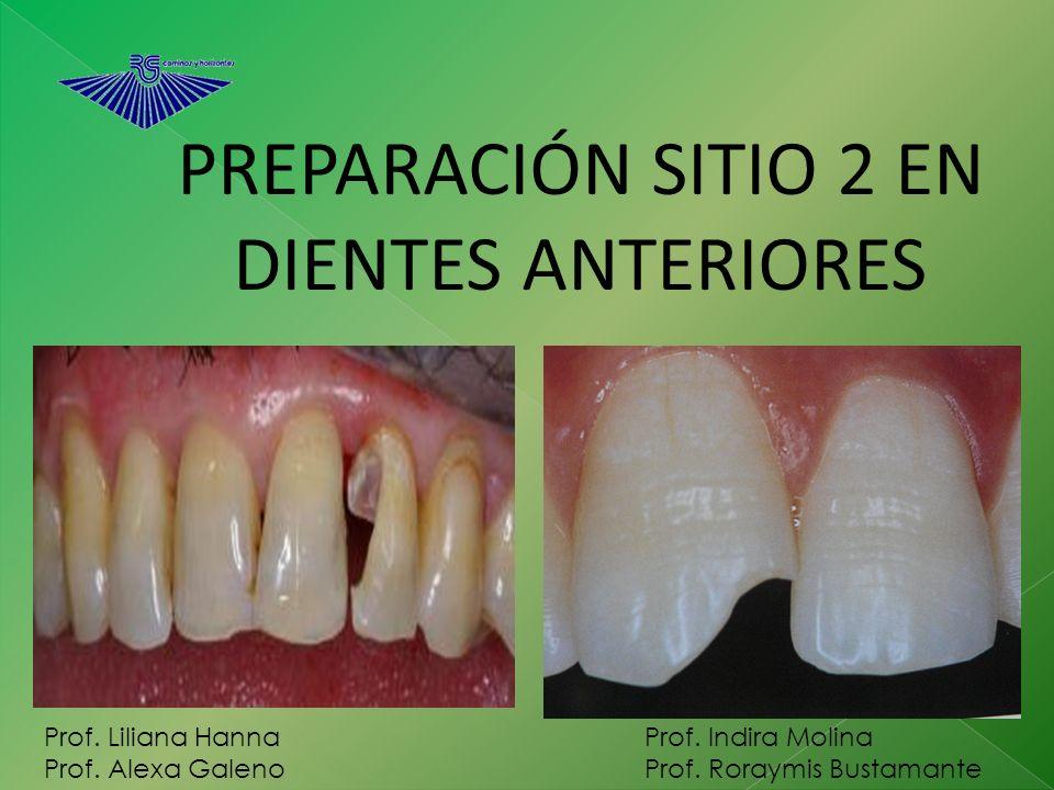 PREPARACIÓN SITIO 2 EN DIENTES ANTERIORES Prof. Indira Molina Prof. Roraymis Bustamante Prof. Liliana Hanna Prof. Alexa Galeno