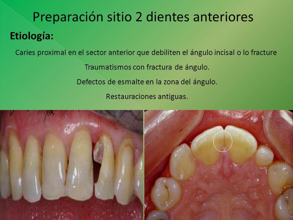 Preparación sitio 2 dientes anteriores Etiología: Caries proximal en el sector anterior que debiliten el ángulo incisal o lo fracture Traumatismos con