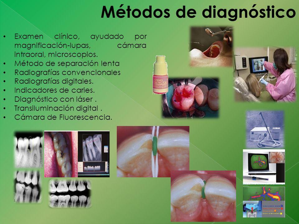 Métodos de diagnóstico Examen clínico, ayudado por magnificación-lupas, cámara intraoral, microscopios. Método de separación lenta Radiografías conven