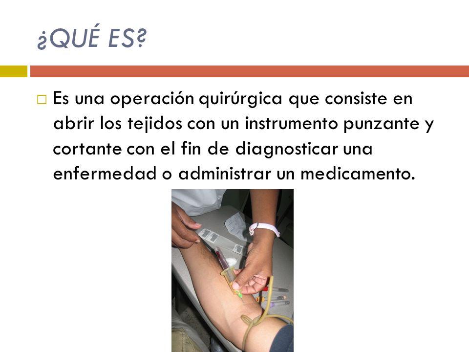 6.Coloque la ligadura entre 4 ó 6 cm por el punto de inserción (permite dilatación venosa) 7.