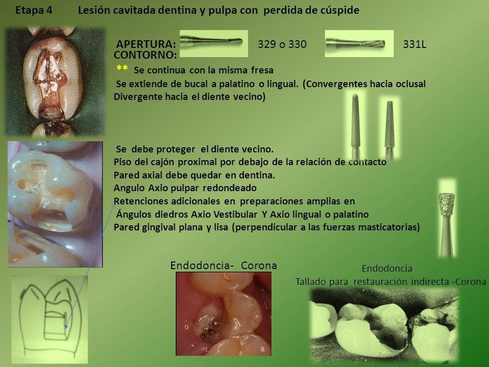 Etapa 4 Lesión cavitada dentina y pulpa con perdida de cúspide APERTURA:329 o 330331L CONTORNO: ** Se continua con la misma fresa Se extiende de bucal