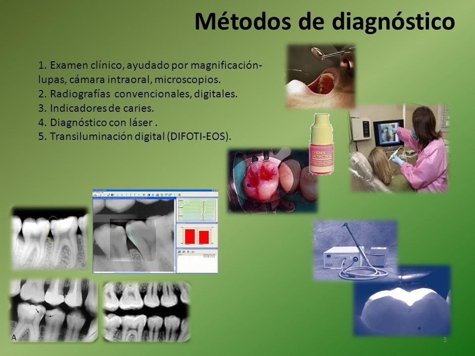Métodos de diagnóstico 1. Examen clínico, ayudado por magnificación- lupas, cámara intraoral, microscopios. 2. Radiografías convencionales, digitales.