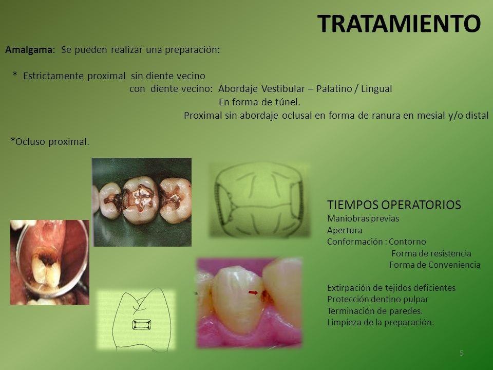 Amalgama: Se pueden realizar una preparación: * Estrictamente proximal sin diente vecino con diente vecino: Abordaje Vestibular – Palatino / Lingual E