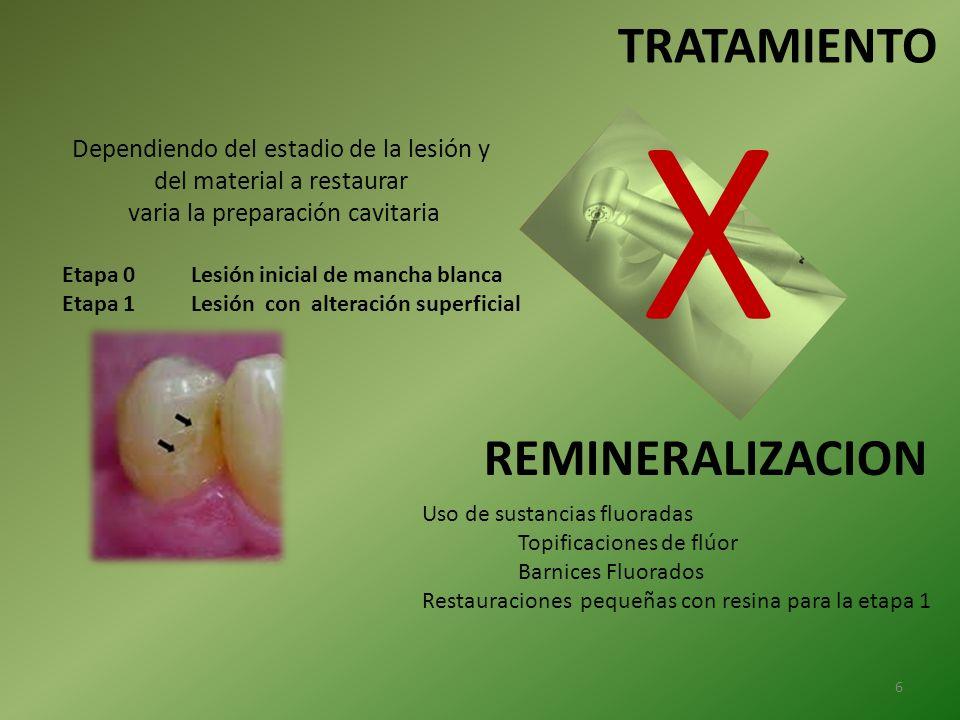 TRATAMIENTO Dependiendo del estadio de la lesión y del material a restaurar varia la preparación cavitaria Etapa 0 Lesión inicial de mancha blanca Eta