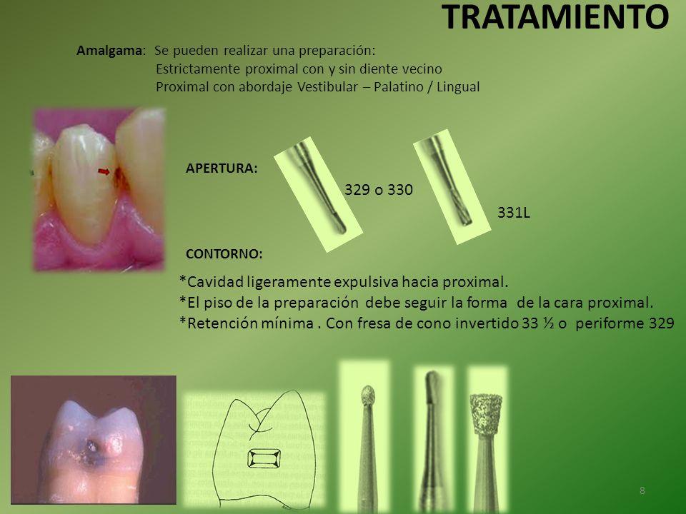 Amalgama: Se pueden realizar una preparación: Estrictamente proximal con y sin diente vecino Proximal con abordaje Vestibular – Palatino / Lingual CON