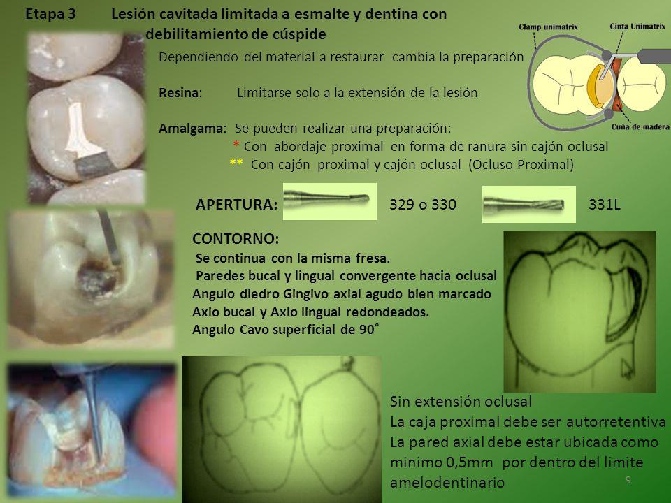 Etapa 3 Lesión cavitada limitada a esmalte y dentina con debilitamiento de cúspide Dependiendo del material a restaurar cambia la preparación Resina: