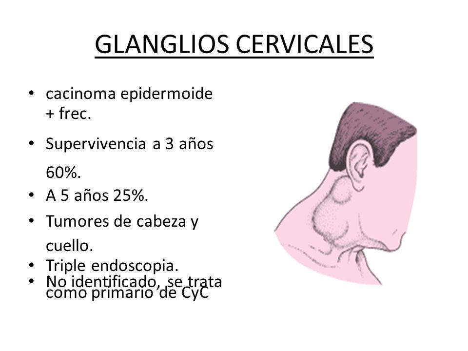 GLANGLIOS CERVICALES cacinoma epidermoide + frec. Supervivencia a 3 años 60%. A 5 años 25%. Tumores de cabeza y cuello. Triple endoscopia. No identifi