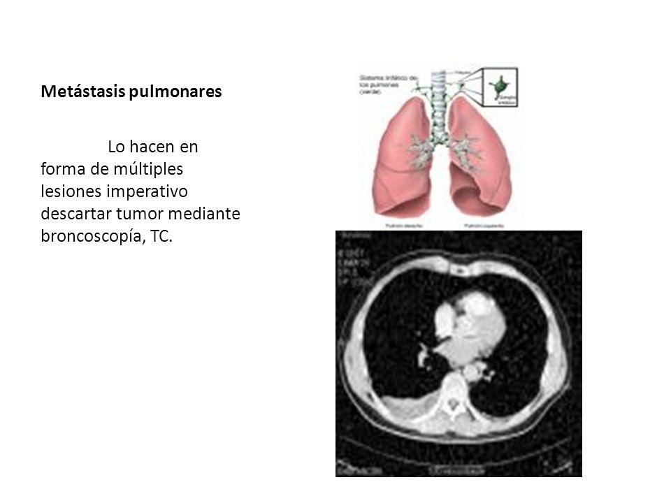 Metástasis pulmonares Lo hacen en forma de múltiples lesiones imperativo descartar tumor mediante broncoscopía, TC.