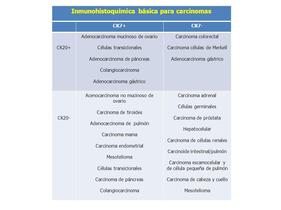 Inmunohistoquímica básica para carcinomas CK7+CK7- CK20+ Adenocarcinoma mucinoso de ovario Células transicionales Adenocarcinoma de páncreas Colangioc
