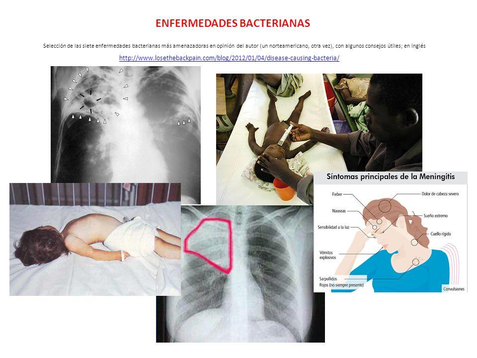 http://www.losethebackpain.com/blog/2012/01/04/disease-causing-bacteria/ Selección de las siete enfermedades bacterianas más amenazadoras en opinión d
