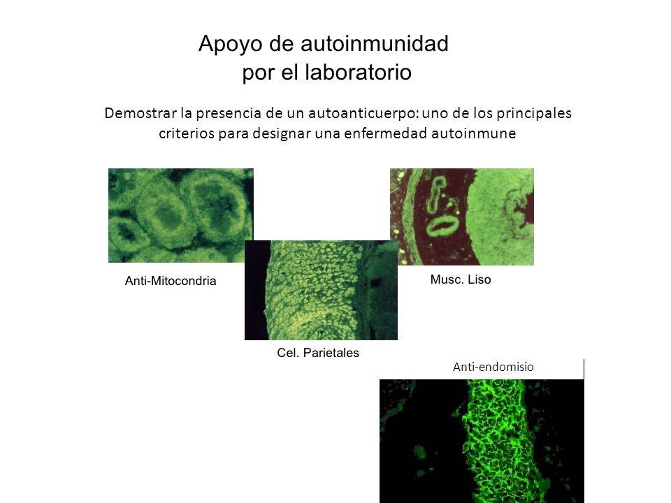 Demostrar la presencia de un autoanticuerpo: uno de los principales criterios para designar una enfermedad autoinmune Anti-endomisio