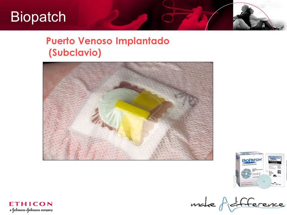 Biopatch Puerto Venoso Implantado (Subclavio)
