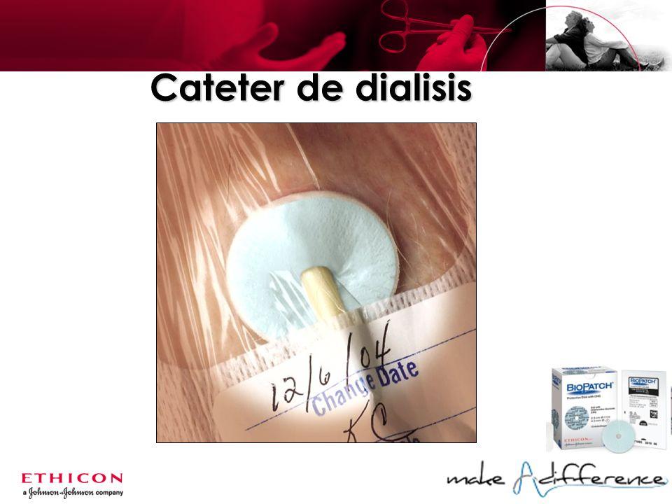 Cateter de dialisis