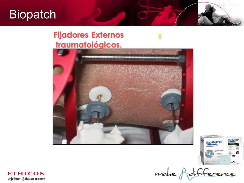 Biopatch Fijadores Externos traumatológicos. E