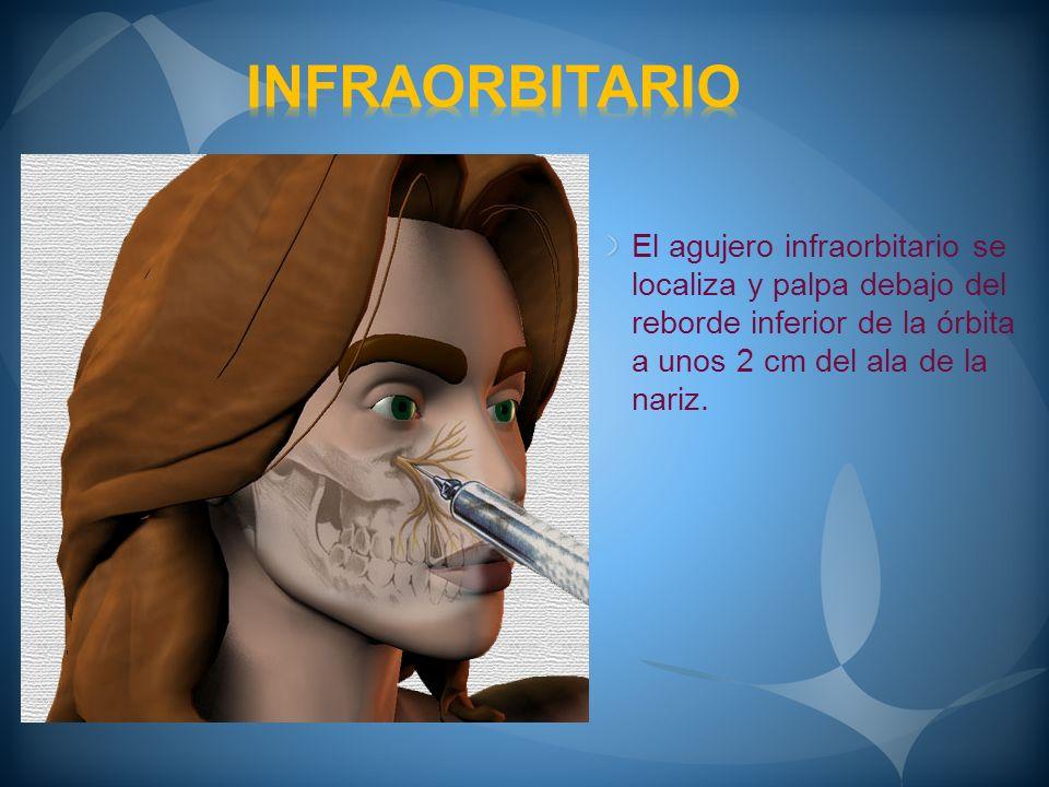 El punto de punción se sitúa a 0.5 cm por debajo del agujero y a 1 cm del ala de la nariz, ya que la aguja de dirigirá desde este punto hacia arriba y hacia afuera.
