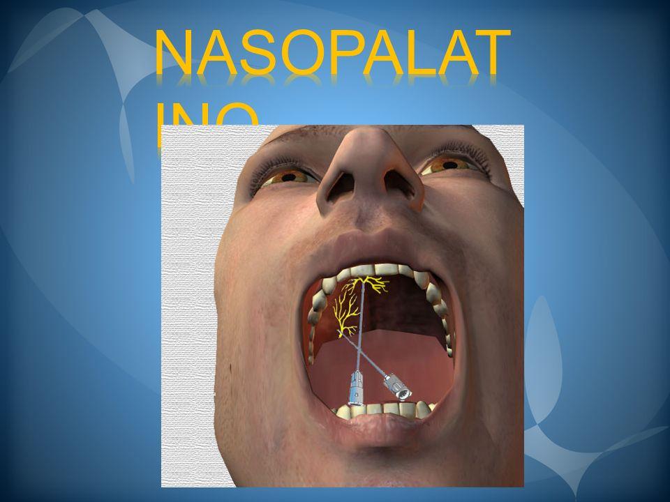 BLOQUEO DEL NERVIO NASOPALATINO El paciente tiene la cabeza en posición media, con hiperextensión de la boca, ampliamente abierta.