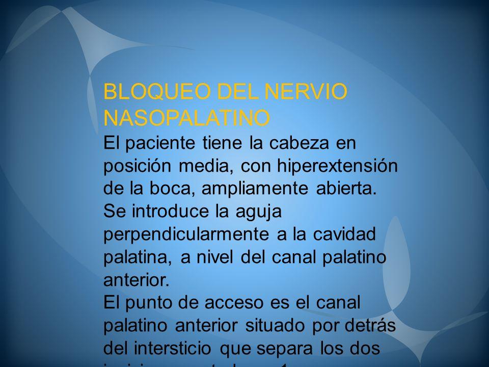 BLOQUEO DEL NERVIO NASOPALATINO El paciente tiene la cabeza en posición media, con hiperextensión de la boca, ampliamente abierta. Se introduce la agu