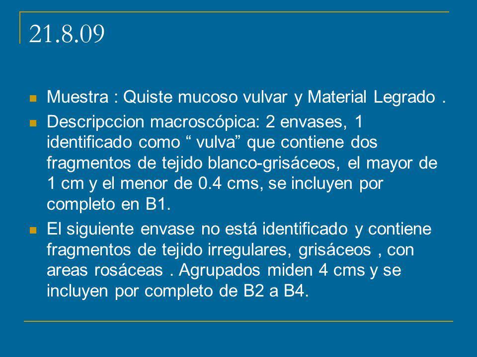 21.8.09 Muestra : Quiste mucoso vulvar y Material Legrado. Descripccion macroscópica: 2 envases, 1 identificado como vulva que contiene dos fragmentos
