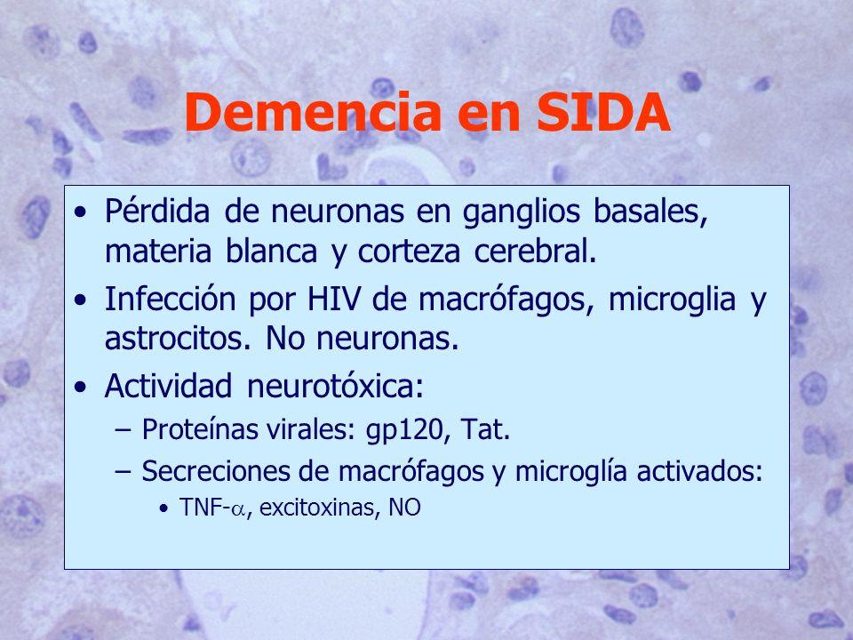 Demencia en SIDA Pérdida de neuronas en ganglios basales, materia blanca y corteza cerebral. Infección por HIV de macrófagos, microglia y astrocitos.