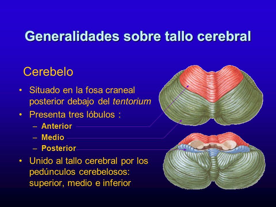 Situado en la fosa craneal posterior debajo del tentorium Presenta tres lóbulos : –Anterior –Medio –Posterior Unido al tallo cerebral por los pedúncul