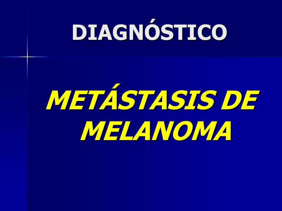 DIAGNÓSTICO METÁSTASIS DE MELANOMA