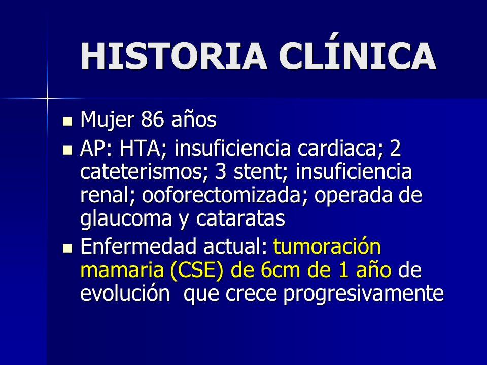 HISTORIA CLÍNICA Mujer 86 años Mujer 86 años AP: HTA; insuficiencia cardiaca; 2 cateterismos; 3 stent; insuficiencia renal; ooforectomizada; operada d