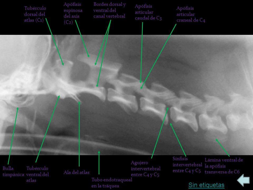 Sin etiquetas Tubérculo dorsal del atlas (C1) Bulla timpánica Ala del atlas Apófisis espinosa del axis (C2) Tubérculo ventral del atlas Bordes dorsal