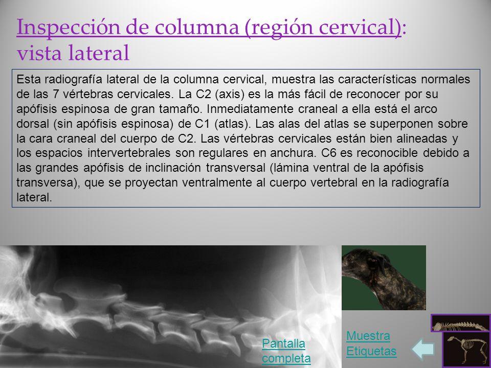 Inspección de columna (región cervical): vista lateral Esta radiografía lateral de la columna cervical, muestra las características normales de las 7