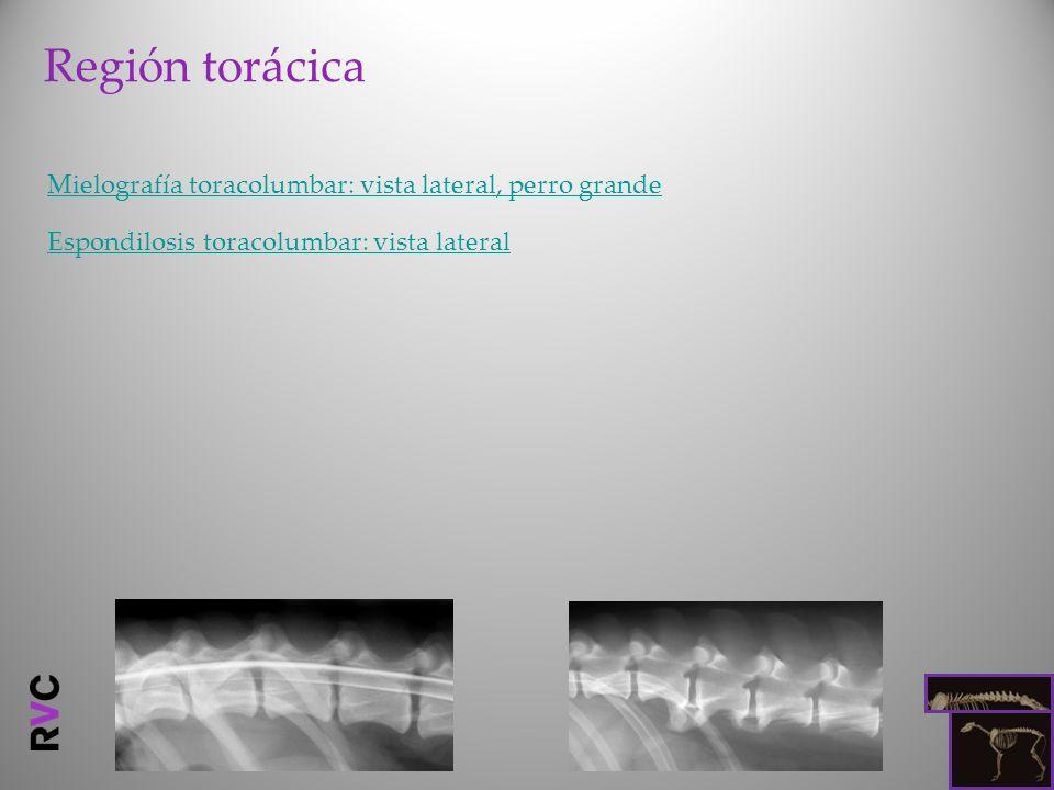 Región torácica Mielografía toracolumbar: vista lateral, perro grande Espondilosis toracolumbar: vista lateral