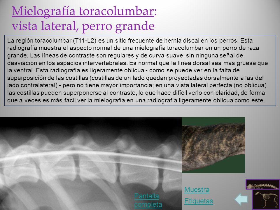 Mielografía toracolumbar: vista lateral, perro grande La región toracolumbar (T11-L2) es un sitio frecuente de hernia discal en los perros. Esta radio