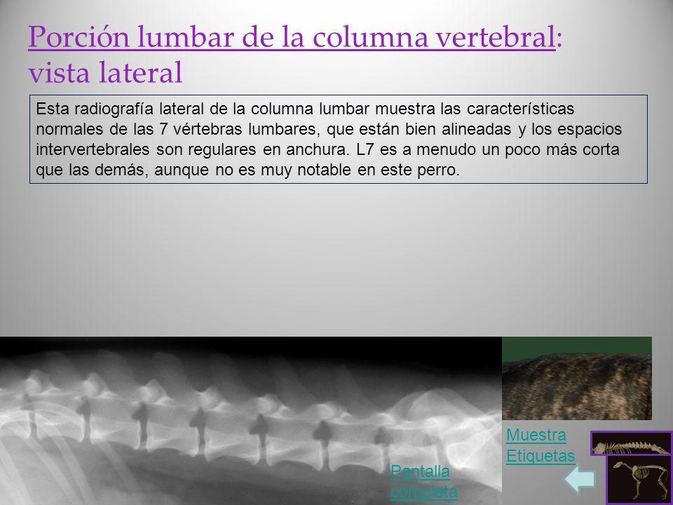 Porción lumbar de la columna vertebral: vista lateral Esta radiografía lateral de la columna lumbar muestra las características normales de las 7 vért
