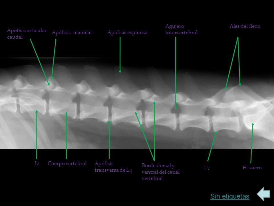 Sin etiquetas Apófisis articular caudal Apófisis mamilarApófisis espinosa L1Cuerpo vertebralApófisis transversa de L4 Borde dorsal y ventral del canal