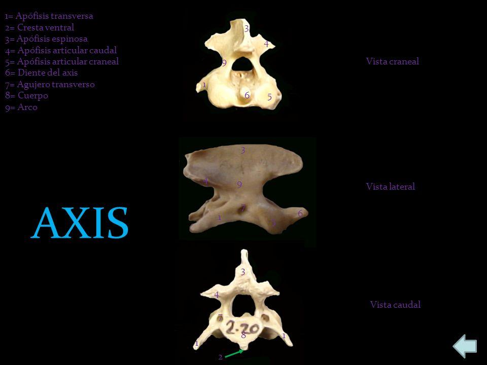 1= Apófisis transversa 2= Cresta ventral 3= Apófisis espinosa 4= Apófisis articular caudal 5= Apófisis articular craneal 6= Diente del axis 7= Agujero