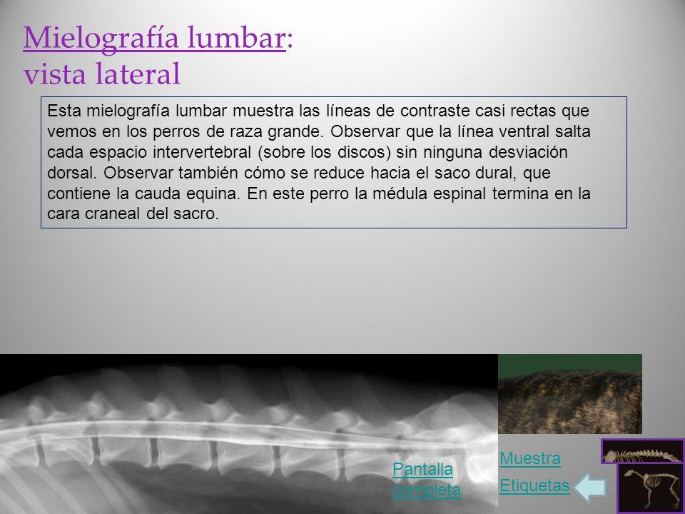 Mielografía lumbar: vista lateral Esta mielografía lumbar muestra las líneas de contraste casi rectas que vemos en los perros de raza grande. Observar