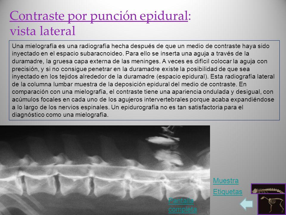 Contraste por punción epidural: vista lateral Una mielografía es una radiografía hecha después de que un medio de contraste haya sido inyectado en el