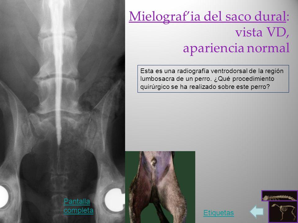 Mielografia del saco dural: vista VD, apariencia normal Esta es una radiografía ventrodorsal de la región lumbosacra de un perro. ¿Qué procedimiento q